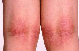 Typical atopic eczema behind the knees